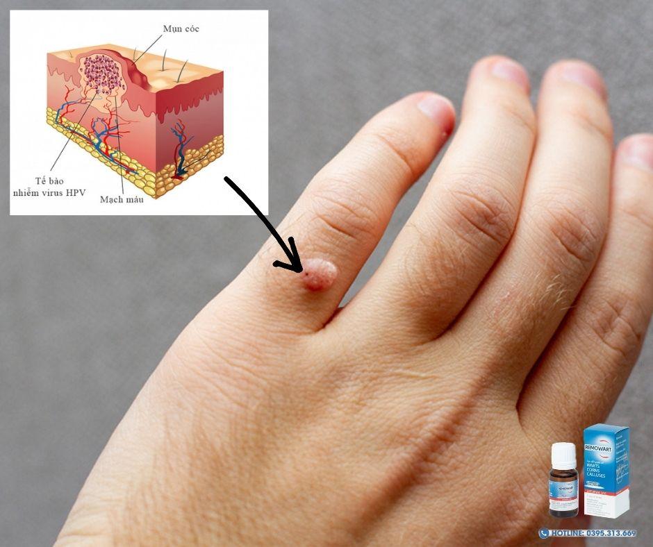 Mụn cóc là những u nhú nhỏ lành tính có bề mặt sần sùi